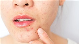 Foods to Avoid During an Acne Breakout, According to Dermatologists