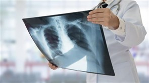 COVID Could Be Causing Long-Term Lung Damage, Study Suggests