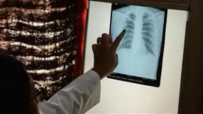 Deaths From Tuberculosis Are on the Rise for First Time in a Decade, WHO Says