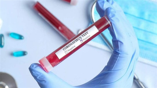 Recovered coronavirus patients found not to be infectious - official