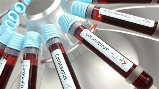 Doctor Tells Congress He Developed Coronavirus Vaccine Years Ago But 'Could Never Get Funding'