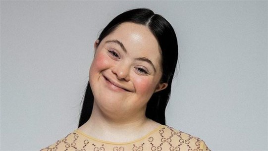 Model with Down's Syndrome Stars in Gucci Campaign in Italian Vogue