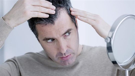 Quarter of Patients Experience Hair Loss in Six Months After Covid Infection, Study Warns