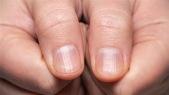 Scientist Warns 'Covid Nails' Could Be Sign You Had Coronavirus Before