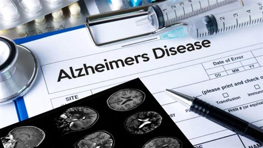 AFP: US Food and Drug Administration approves Aduhelm, first new Alzheimer's drug in almost two decades